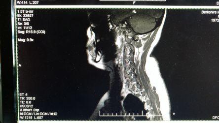 MRI Side view