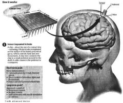 microchip-implant-brain-mapping