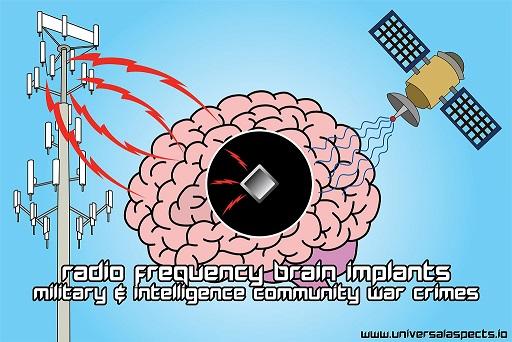 RF Implants1