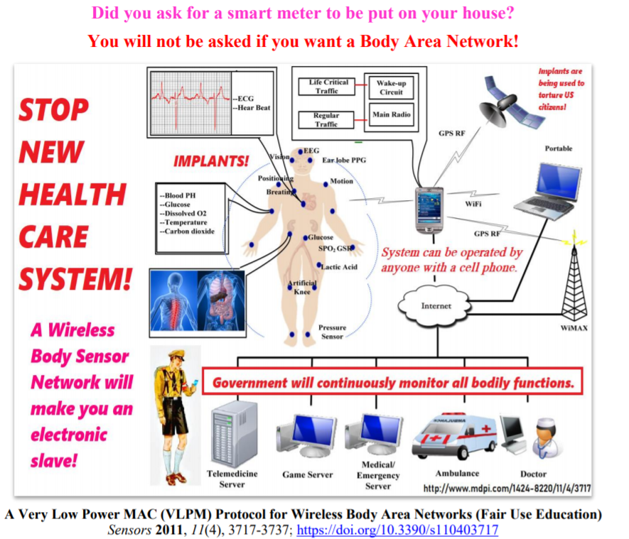 Image from Stop Implantation of Wireless Body Sensor Networks